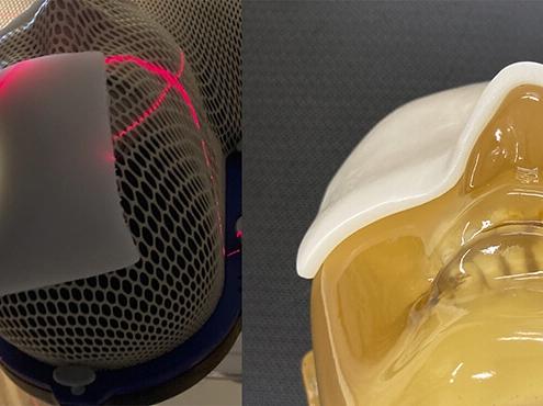 頭部にボーラスをのせて照射する様子㊧と治療時に成形した状態㊨(写真提供:近畿大学)